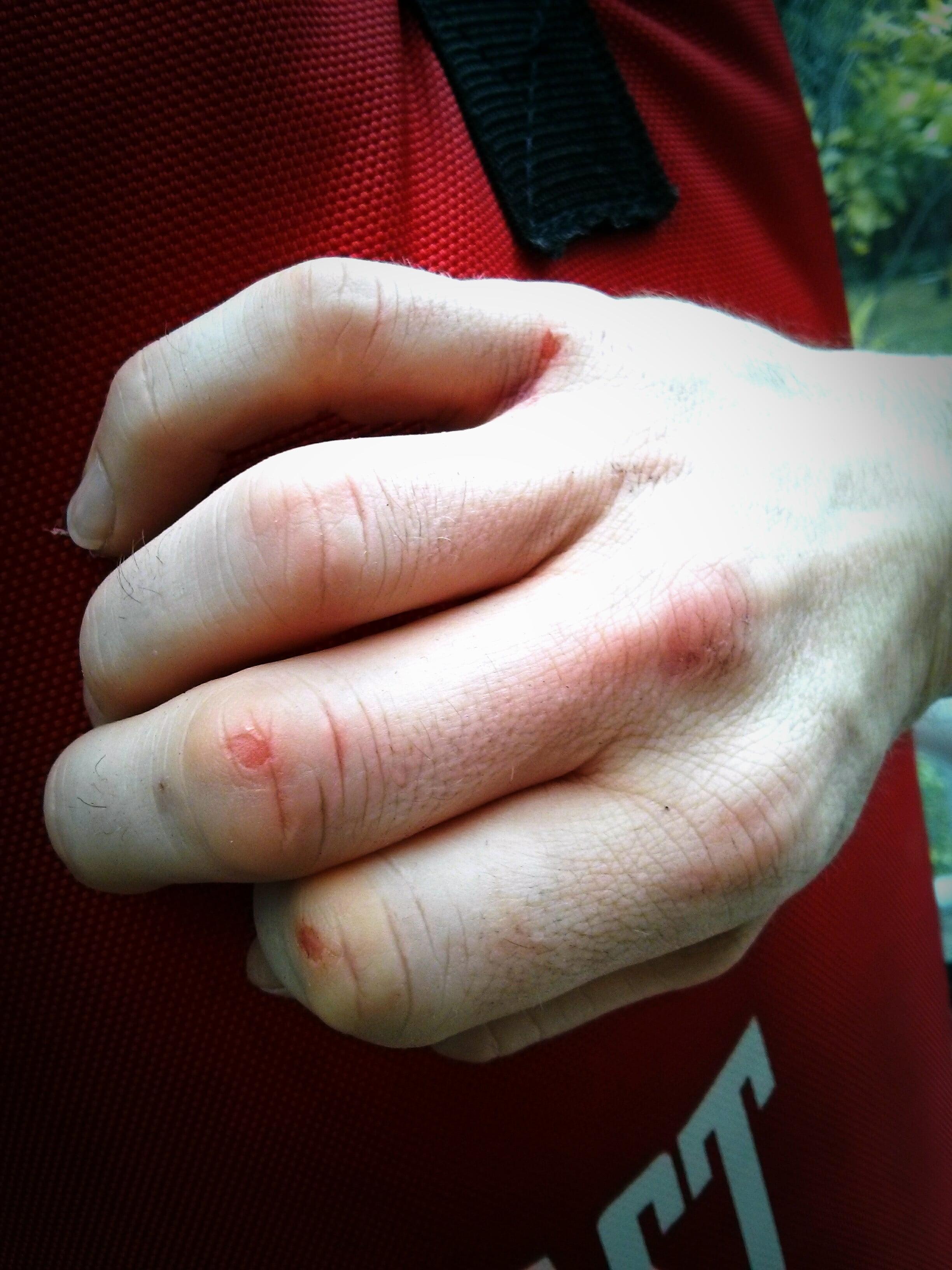 skinned knuckles